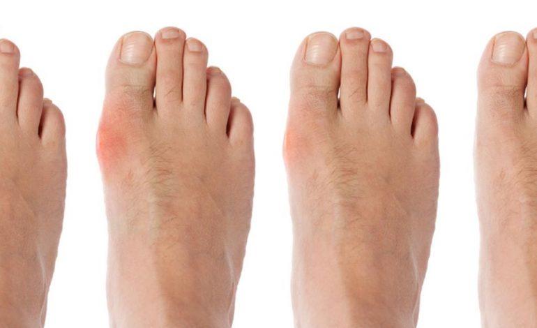 inflamația articulațiilor degetului de la picior