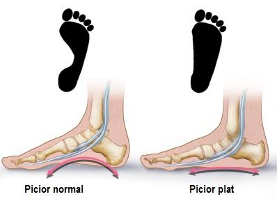 umflatura glezna cauze artroza genunchiului grad 3