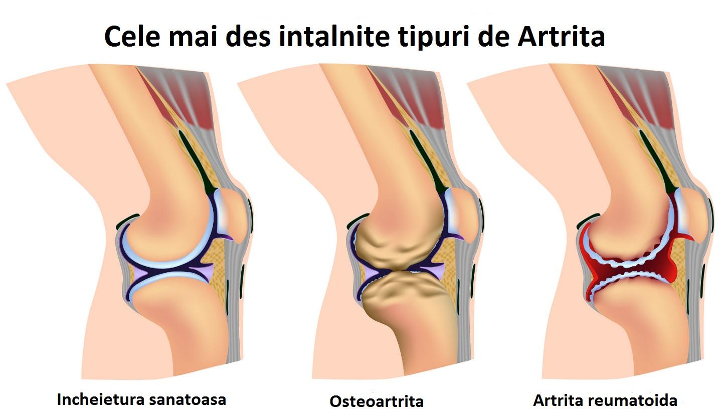 artrita piciorului unde se va trata