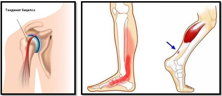 genunchii și articulațiile doare