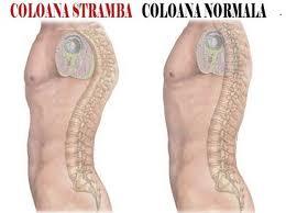 tratarea coloanei vertebrale și a anastaziei articulațiilor semenova balsamuri de vindecare pentru articulații