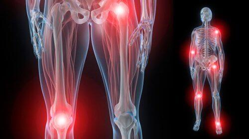 cum să faci față artrozei articulațiilor preparate pentru mușchi și articulații