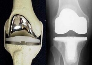 железный коленный сустав durere la prima articulație metatarsofangiană