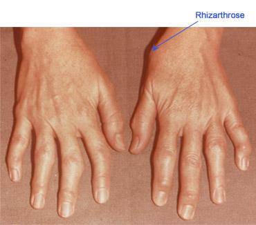 cum să tratezi durerea în articulațiile degetului mare