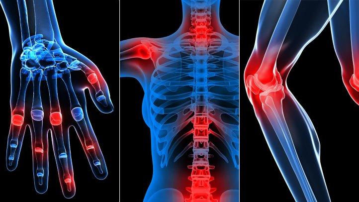 cum să tratezi mâinile dacă artroza