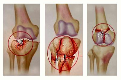 fizioterapie. artroza genunchiului inflamație simultană a articulațiilor