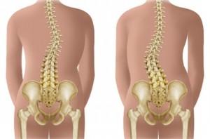 tratarea coloanei vertebrale și a anastaziei articulațiilor semenova inflamație în jurul cotului