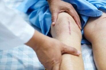 teip pentru durere în articulații în timp ce aleargă, articulația șoldului doare