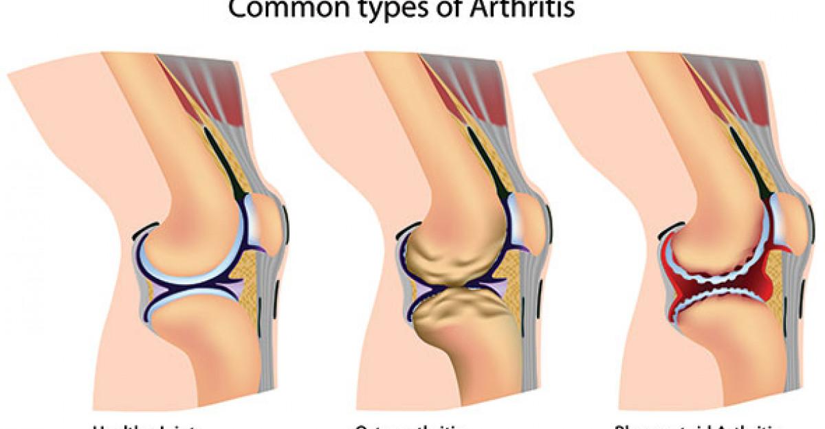 unguente pentru retorsiunea articulațiilor genunchiului este posibil să încălziți articulațiile dacă se doare