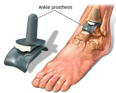simptomele și tratamentul artrozei gleznei unguent pentru articulațiile picioarelor după o fractură
