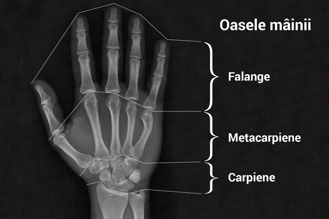 refacerea mobilității articulațiilor degetelor după o fractură