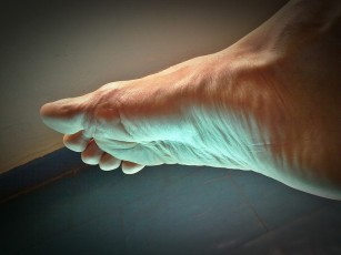 articulația pe degetul de la picior este inflamată tratament cu articulații creoline