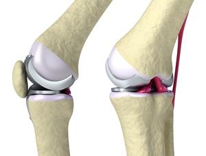 железный коленный сустав pe mâna o doare pe articulație doare