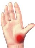 deget mare. dureri la nivelul articulației artroza tratamentului articulațiilor genunchiului și a pastilelor