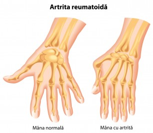 probleme cu ligamentele articulației șoldului tratament cu articulații creoline