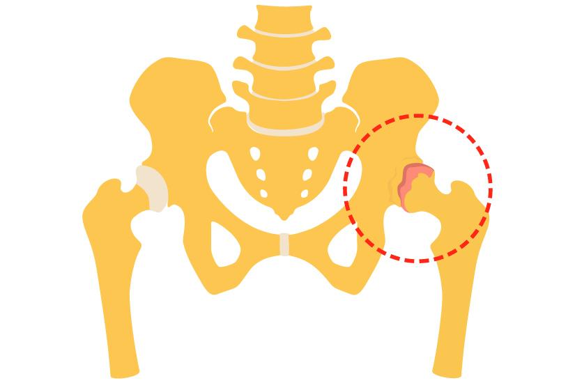 durere la nivelul articulațiilor șoldului cu mers lung