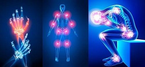 durere în articulațiile mâinilor decât pentru a trata articulațiile mâinilor doare în timpul exercițiului fizic