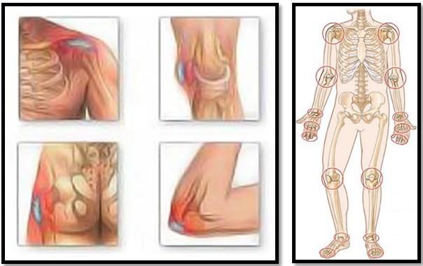 atenuând durerea în articulațiile brațelor și picioarelor