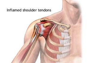 dureri musculare în articulația umărului drept