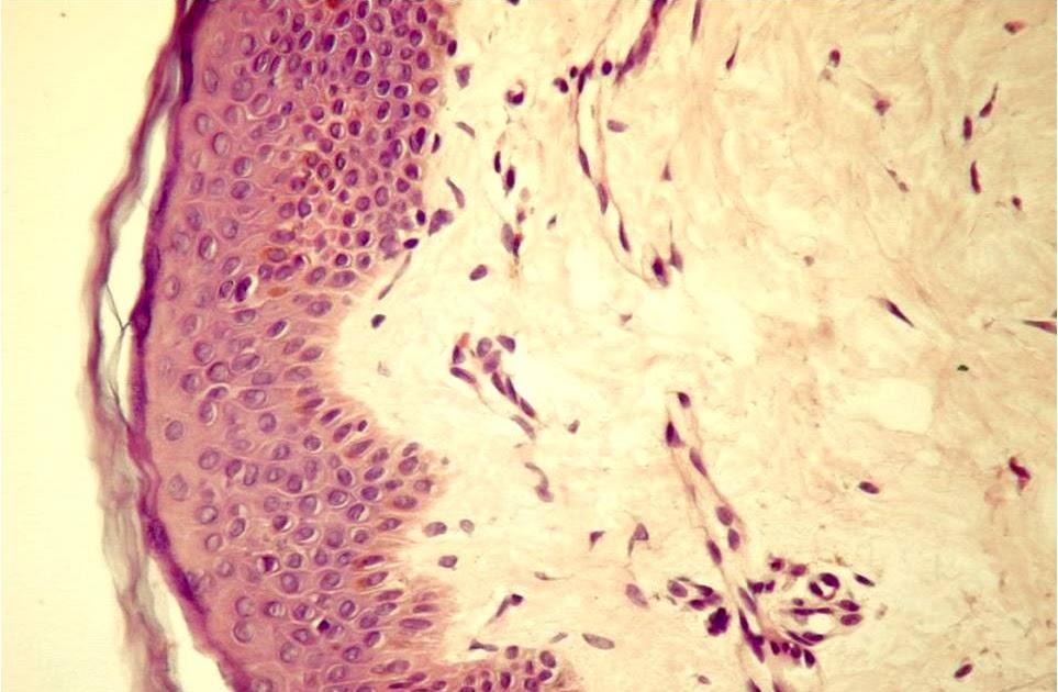 tip de celule de țesut conjunctiv cartilaj cum să tratezi articulațiile umărului mâinilor