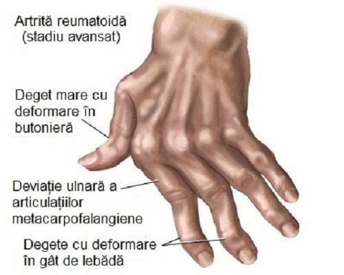 artrite reumatoide mâini