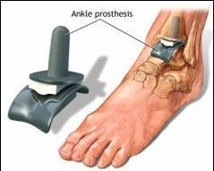 artroza simptome de gleznă și tratament
