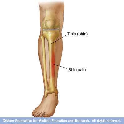 dureri articulare și musculare la piciorul drept articulații de balsam pur