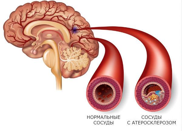 durere în articulațiile degetului arătător Vitaminele B pentru tratamentul artrozei