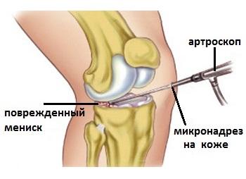 inflamația meniscului genunchiului tratament de 2 grade