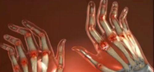 dureri articulare și degetul seara