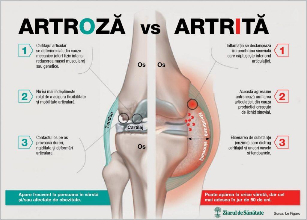 umflarea mâinilor cu artrită