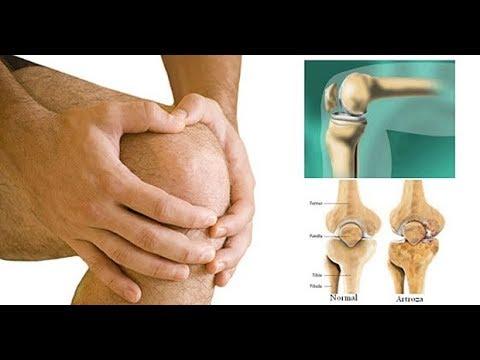 Tratamentul artrozei cu ulei de camfor -