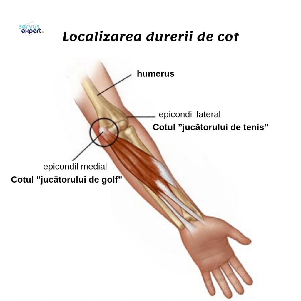 articulațiile osteocondrozei brațului