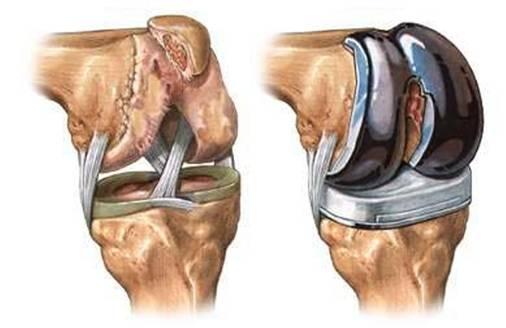 железный коленный сустав tratament complex al artrozei articulației cotului