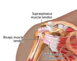 ceea ce deformează artroza articulației încheieturii