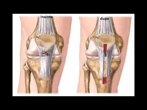plata pentru vătămarea genunchiului tratament pentru inflamația articulațiilor piciorului