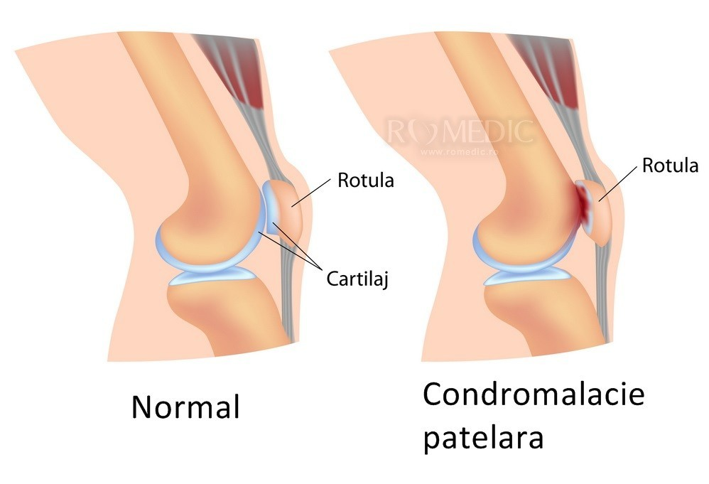 deteriorarea menisului articulației genunchiului stâng