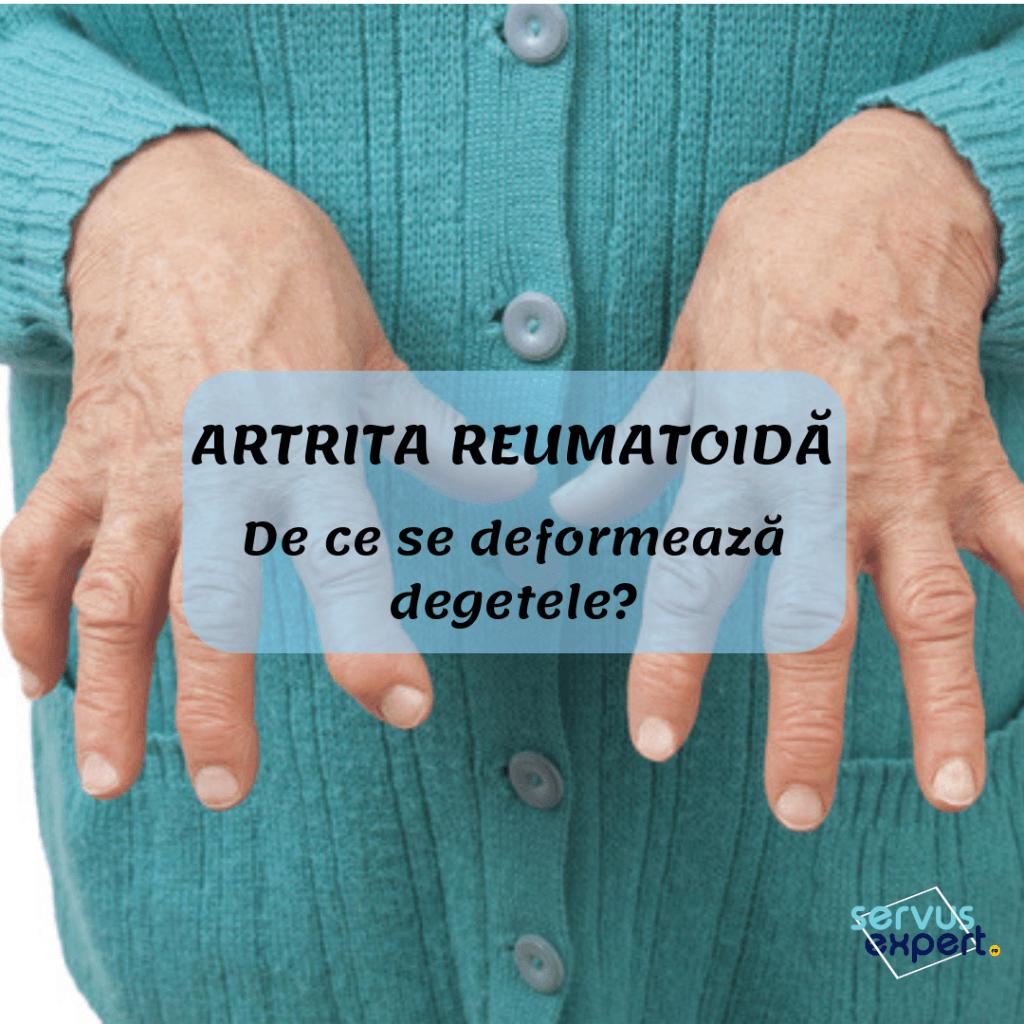 artrite reumatoide mâini tratamentul exacerbării artrozei