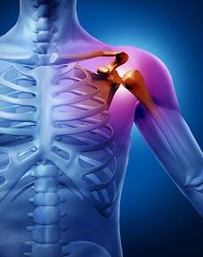 tratamentul artrozei în Germania artroza tratamentului termic al articulațiilor umărului