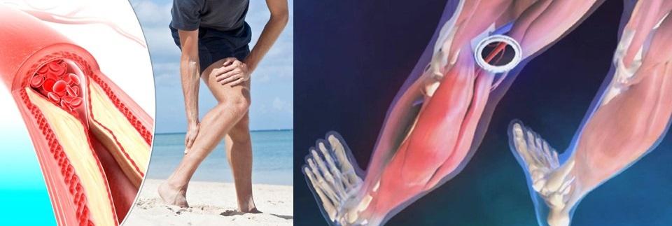 Durere la nivelul piciorului inferior și la nivelul piciorului, se...