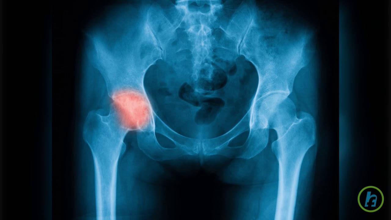 durere ascuțită în articulația șoldului drept