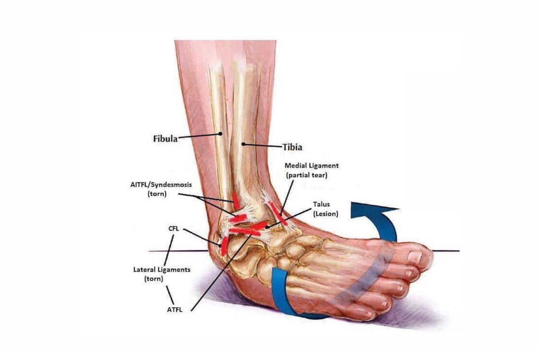 ruperea ligamentelor gleznei dacă articulația se umflă