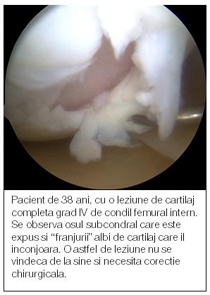 medicamente regeneratoare de cartilaj în articulația genunchiului