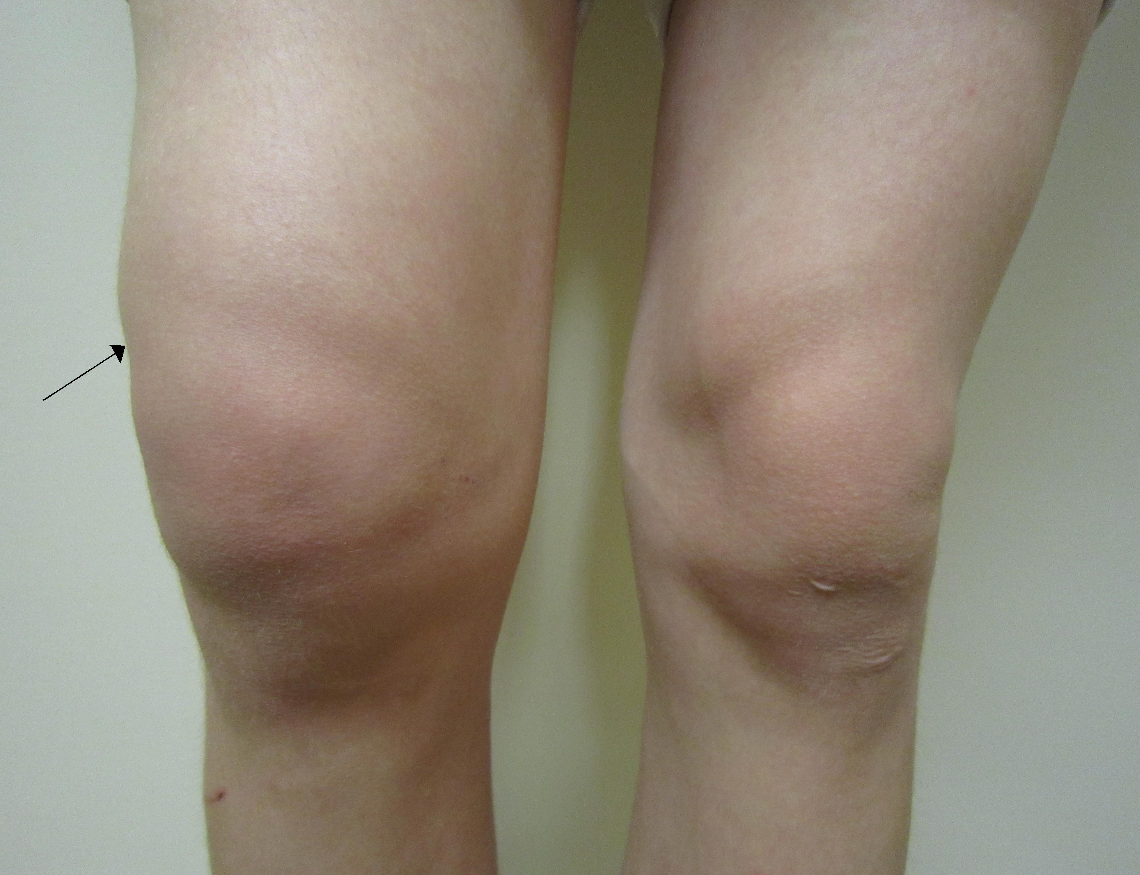 tratamentul fluid al articulațiilor genunchiului artroza 2 Tratamentul articulației genunchiului de 3 grade