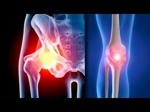 articulații pe un picior rănit