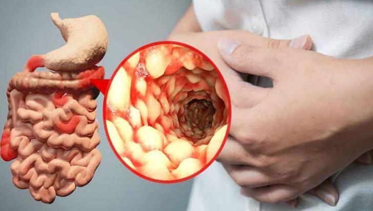 Boala Crohn și dureri articulare medicament pentru blocarea umerilor