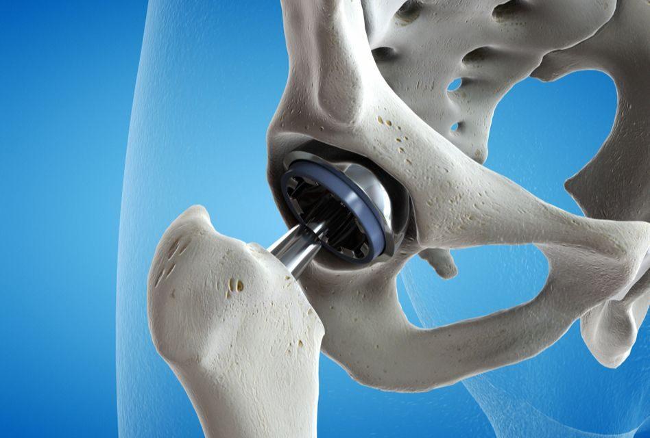 deteriorarea oaselor pelvisului și articulațiilor șoldului
