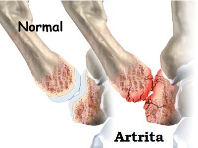 din deteriorarea articulațiilor tratamentul artritei și artrozei și cauzelor