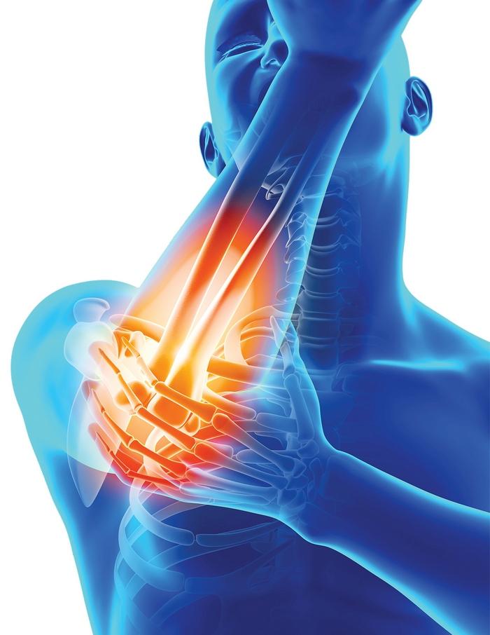 artroză 1-2 grade ale tratamentului articulației umărului