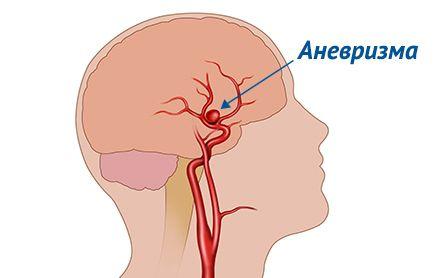 Boli vasculare cerebrale - Cercetări Лечение сосудов головного мозга